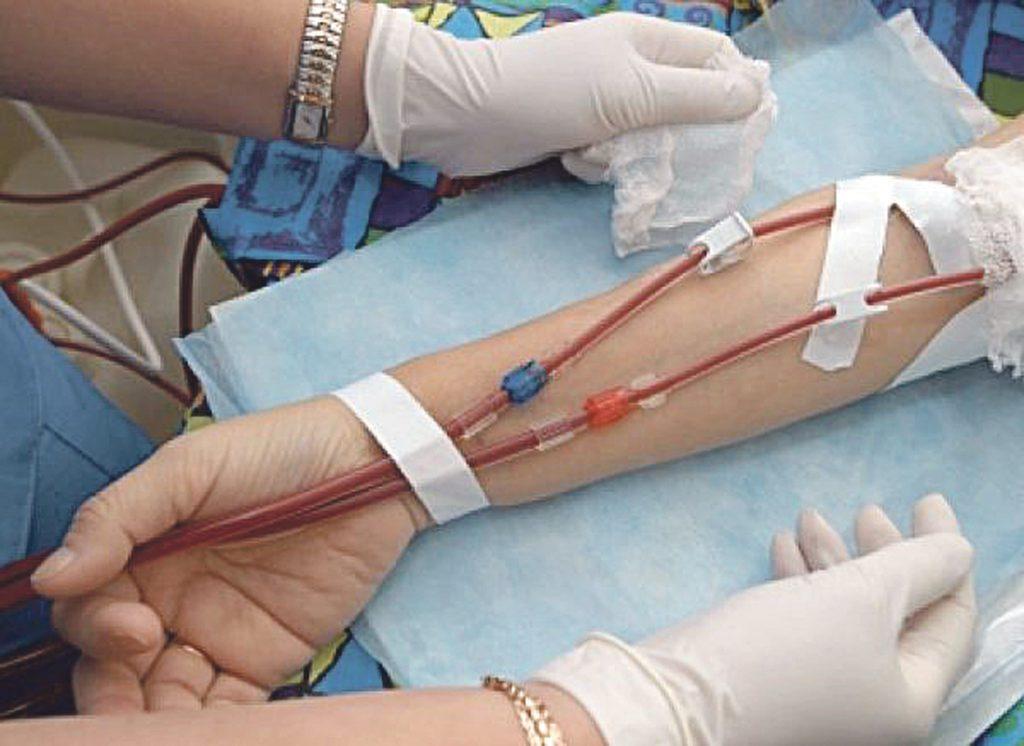 Vinchiaturo, la lettera di Katia ai medici del Cardarelli: «Grazie per avermi salvato la vita»